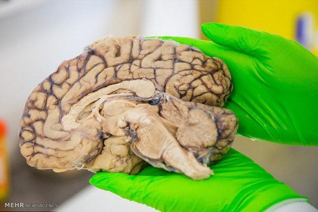 دستگاه تحریک عمقی غیرتهاجمی مغز ساخته شد
