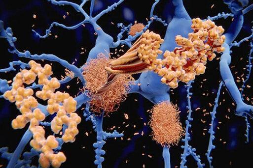 نکته بهداشتی: پیشگیری از آلزایمر