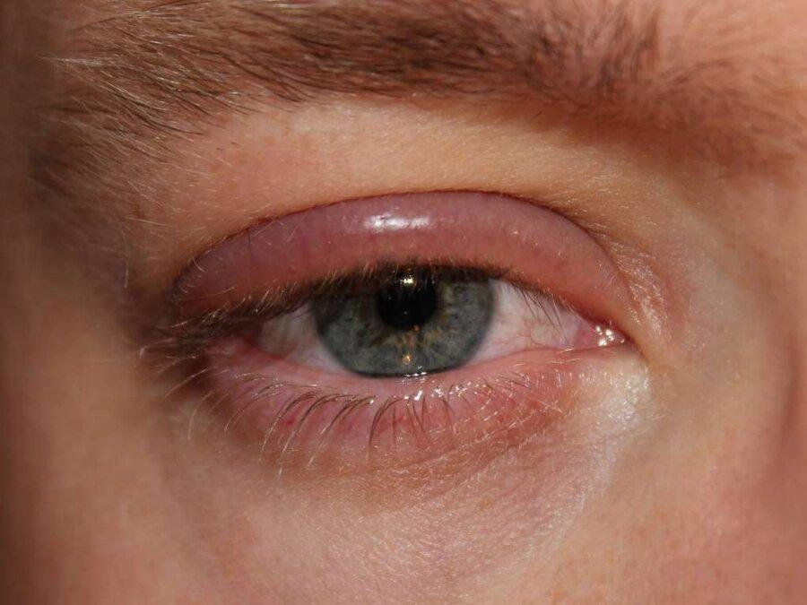 هشدار درباره شیوع عفونت های ویروسی چشم در فصل سرد